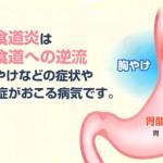 下部食道括約筋を鍛える方法!!これだけでも胃酸の逆流を防ぐ効果があります