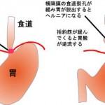 食道裂孔ヘルニア(逆流性食道炎)は手術して直せ!手遅れになる前に